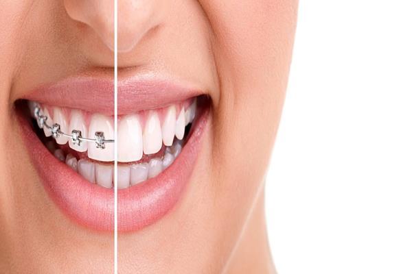 Chcesz założyć aparat ortodontyczny? Sprawdź aktualne ceny, rodzaje, trendy